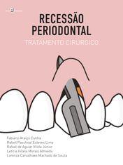 Recessão Periodontal